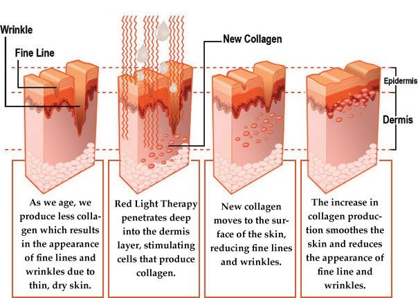 Benefits Of Red Light Therapy Photo Gallery