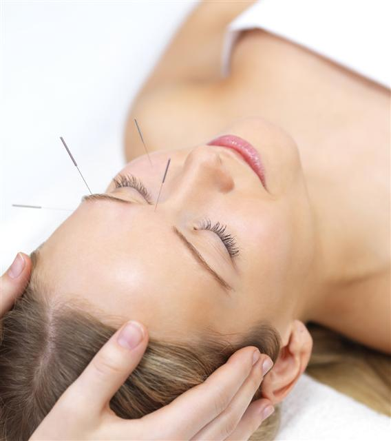 acupuncture of lake mary and orlando
