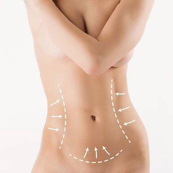 lake mary body contouring center