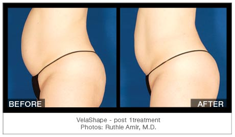 Velashape in Lake mary